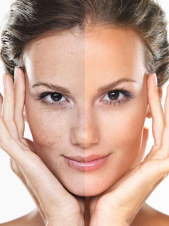 Cosmetic-Treatment-advice