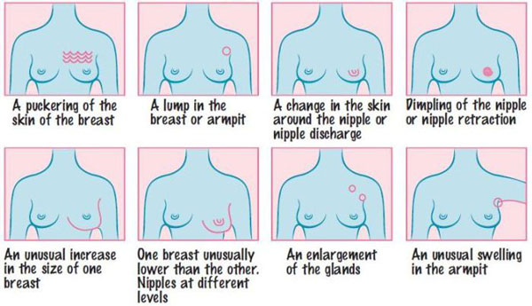 CANSA breast cancer warning signs